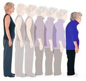 Symptomen van Osteoporose