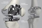 Titanium joint replacement