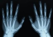 What is an X Ray?