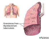 Infected lung