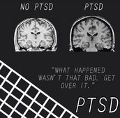 Brain With PTSD