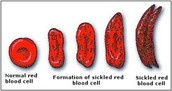 The forms of the Sickle-Cell