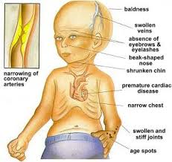 Signs and Symptons of Progeria