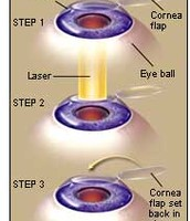 LASIK Eye Surgery (how it's done)