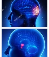 Areas Affected: Occipital Lobe and Hypothalamus