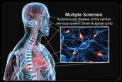 What Leads To Multiple Sclerosis?