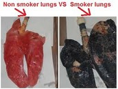 Effects of Smoking on the Lungs