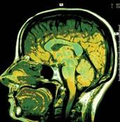 What Causes Meningitis?