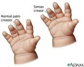 Single Crease Across Palm