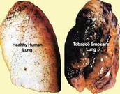 Picture of lungs after tobacco