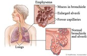 what is emphysema