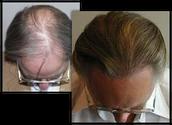 PROVEN LASER HAIR REJUVENATION!