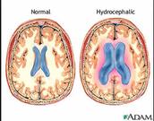 Normal Brain Compared to Junior's