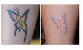 Fading Tattoo