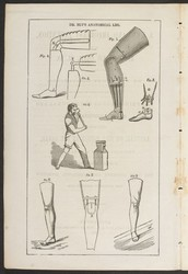 """""""the most complete and successful invention ever attained in artificial limbs."""" at the time anyway."""