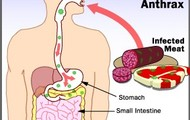 Gastrointestinal Anthax