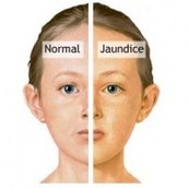 This is what a normal baby looks like compared to a baby with Jaundice