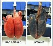 What a Smokers Lungs Looks Like.