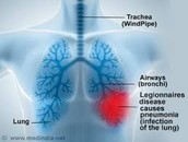 What part of the body does Legionnaires infect?