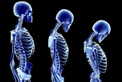 Change in posture is a sign that you may have osteoporosis