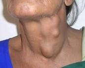 Lymphoma on the neck