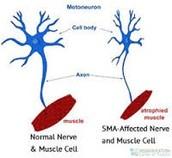 Affected Nerves