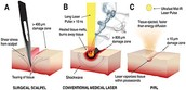 Laser Scalpel vs. The Traditional Scalpel