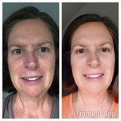 Fellow consultant, Faith, has her mother on our Reverse Regimen.