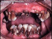 Your Mouth if you decide to use Tobaco