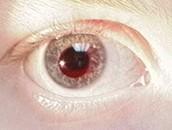 Eye of a person with Achromatopsia