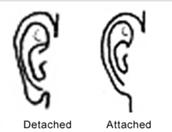 Detached ear lobes