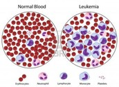 How Leukemia Spreads