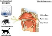 Allergic rhinitis(hay fever)- group pf symptoms affecting the nose