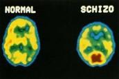 A normal brain, beside a schizophrenic brain.