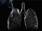 lung damage