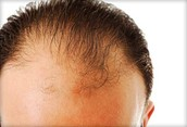 Topical Hair Loss Treatment Use the Best Topical Hair Loss Treatment Product on the Market Today