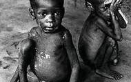 Desnutricion En Los Niños