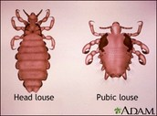 What is Pubic Lice?