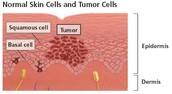 Formation of Melanoma