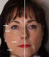 Luminesce Skin Care