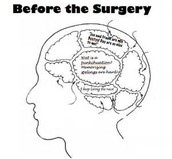 Mind Map Before Surgery