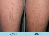 How to Treat Spider Veins