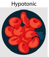 Hypotonic Solution