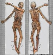 Otzi's Body