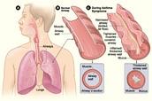 Respiratory Disease: Asthma
