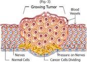 Cancerous Tumor (3)