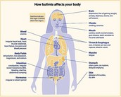 10 facts about Bulimia Nervosa