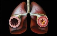 A open and close lung