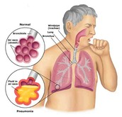 WHERE DOES LUNG CANCER GENERALLY AFFECT?