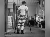 A polio patient